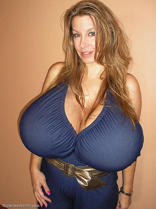 Bộ ngực nở ra từng ngày của Chelsea đã nặng đến... 15 lít, khoảng 12kg. (Ảnh: Internet)
