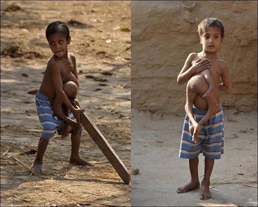 Xót thương cậu bé mọc đôi chân từ ngực
