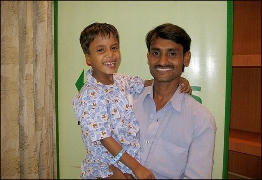 Deepak phục hồi rất nhanh sau ca mổ và có thể đi lại bình thường, cười nói vui vẻ. (Ảnh: Internet)