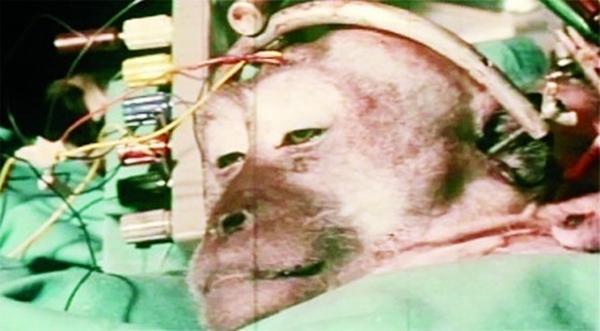 Thông tin mới nhất về ca phẫu thuật ghép đầu người đầu tiên trong lịch sử nhân loại