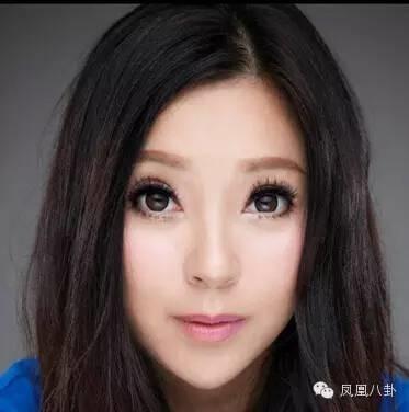 Khuôn mặt khác lạ sau khi phẫu thuật thẩm mĩ