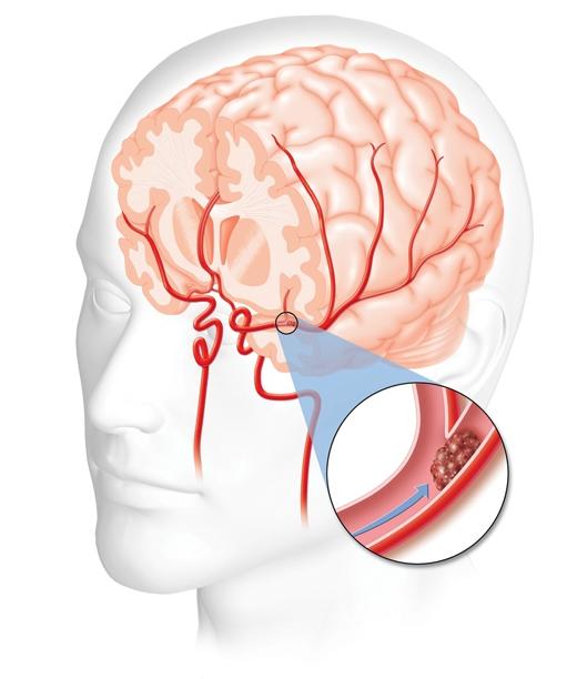 Ảnh minh họa hiện tượng tắc mạch máu não. (Ảnh: Internet)