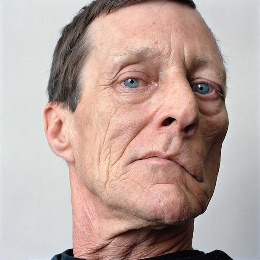 Người đột quỵ mặt thường lệch qua một bên.(Ảnh: Internet)