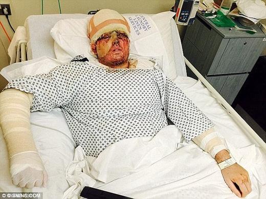 Hình ảnh Andreas trong bệnh viện sau khi được cấp cứu. (Ảnh: Daily Mail)