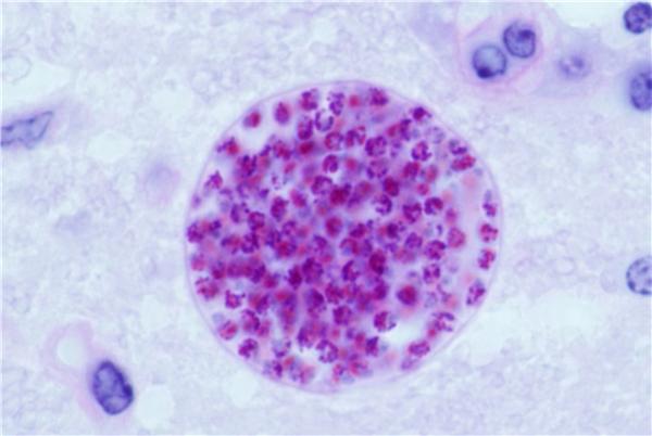Kí sinh trùng Toxoplasma (Ảnh: Internet)