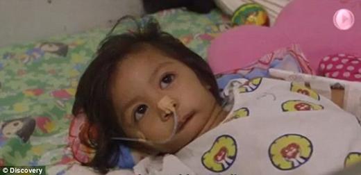 Cô bé từ lúc ra đời phải được cho ăn bằng ống thông qua đường lỗ mũi. (Ảnh: Internet)