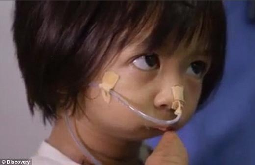 Phải trải qua 2 cuộc phẫu thuật gian nan, đau đớn để có được khuôn miệng bình thường. (Ảnh: Internet)