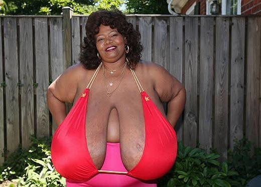 Cô Norma Stitz, tên thật là Annie Hawkins -Turner, được sinh ra tại Atlanta, Georgia hiện đang là người sở hữu bộ ngực lớn nhất thế giới. Cô được sách Guinness ghi nhận là có bầu ngực tự nhiên lớn nhất thế giới với kích cỡ 102ZZZ, nặng 51 kg. Bộ ngực đã khiến cô gặp nhiều khó khăn trong cuộc sống. (Ảnh: Internet)
