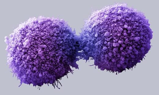 Các tế bào ung thư sẽ bị tiêu diệt trong cơ thể người khỏe mạnh. (Ảnh: Internet)