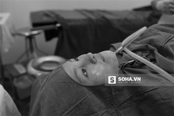 """Một ống hút chuyên dụng được cắm vào vùng cằm của Quỳnh Anh dùng để lấy đi những """"cơn phiền toái"""" không muốn có này."""