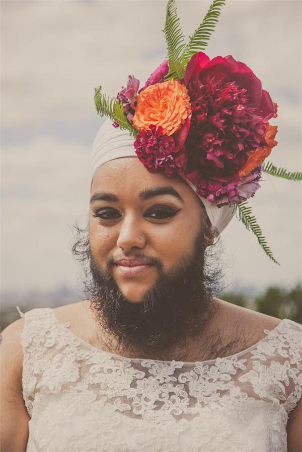 Kì lạ cô nàng... mọc râu quai nón từ năm 11 tuổi