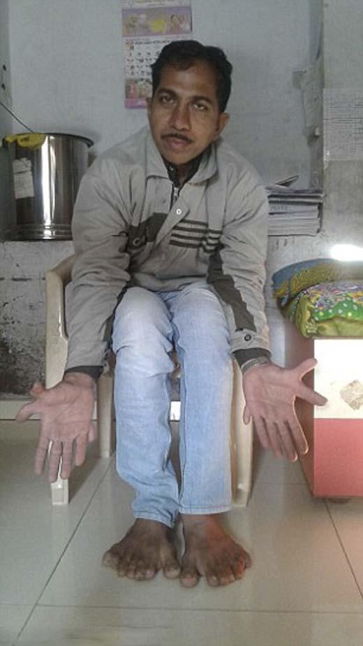 Người đàn ông này không hề nghĩ rằng những ngón thừa trên tay và chân mình là dị tật.(Ảnh: Internet)