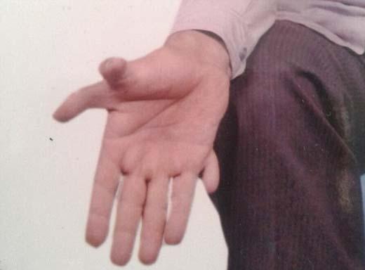 Anh luôn sợ những ngón tay thừa của mình sẽ bị cưa phải trong lúc làm việc. (Ảnh: Internet)