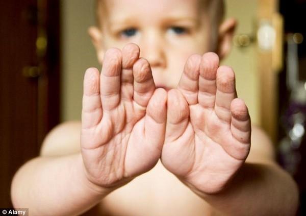 Da ở đầu ngón tay chúng ta thường bị nhăn sau khi tắm.(Ảnh: Internet)