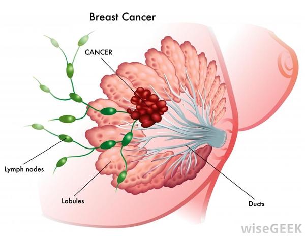 Chế độ ăn uống nhiều chất béo làm tăng nguy cơ mắc phải ung thư vú. (Ảnh: Internet)