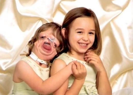 Treacher Collins là căn bệnh gen hiếm gặp, trong khi chị ruột Kendra phát triển bình thường thì Juliana lại mắc phải căn bệnh này. (Ảnh: medicaldaily)