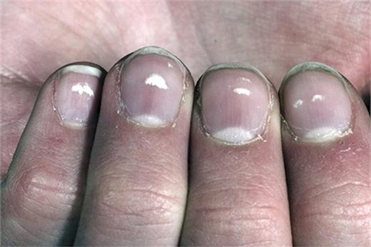 Việc thiếu kẽm, một kim loại vẫn luôn tồn tại trong cơ thể, cũng có thể gây ra những đốm hay vệt trắng trên móng. (Ảnh: Internet)