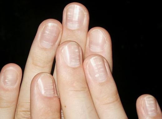 Nhiều người vẫn tin nguyên nhân phổ biến nhất gây đốm mónglà do thiếu canxi. (Ảnh: Internet)