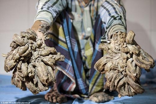 Người hóa cây - Căn bệnh quái ác khiến các nhà khoa học đau đầu