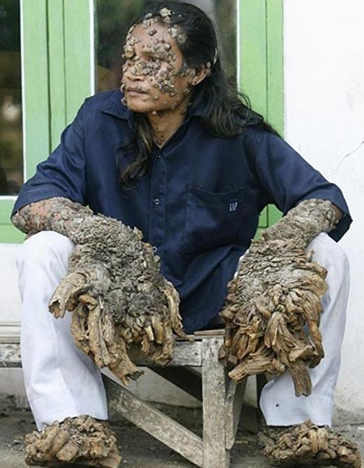 ÔngDede Koswaraở Indonesia. (Ảnh: Internet)