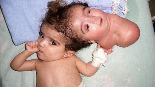 Cô bé Manar có một cơ thể bình thường, nhưng bị dính liền với người chị sinh đôi vốn chỉ có phần đầu và cổ. Để cứu lấy con, mẹ cô đã quyết định làm phẫu thuật tách rời. Cuộc phẫu thuật thành công, nhưng Manar bị nhiễm trùng não và đã qua đời. (Ảnh: Internet)