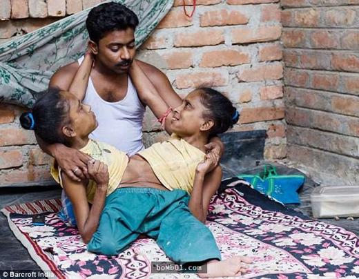 Hai chị em Ganga và Jamuna người Ấn Độ bị dính liền phần thân dưới, cả hai cùng chia sẻ phần bụng nhưng chỉ có 3 chân. Dù vậy họ lại có thận, gan và tim khác nhau. Họ cùng yêu một người đàn ông. (Ảnh: Internet)