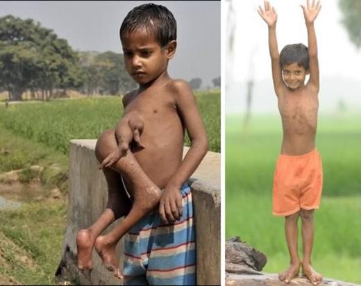 Cậu bé Deepak Paswaan ở Bihar, Ấn Độ chào đời với một cặp chân và tay thứ hai dính ở trước ngực, khiến cho dân làng tin rằng kiếp trước cậu là quỷ. Tuy nhiên, cậu bé đã được một bệnh viện giúp phẫu thuật miễn phí, loại bỏ chân tay thừa. Hiện tại cậu bé đã quay trở về với cuộc sống bình thường. (Ảnh: Internet)