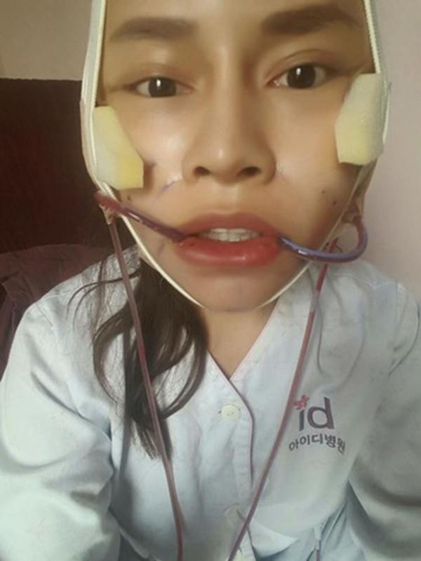 """Gương mặt đang được """"trùng tu"""" sau quá trình phẫu thuật thẩm mĩ của Vanrisa. (Ảnh: Internet)"""