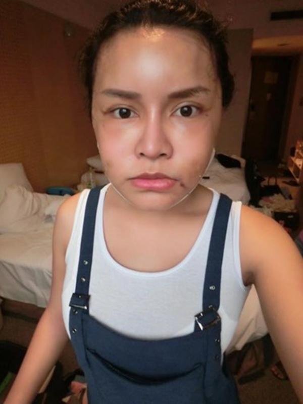 Cằm của cô trong quá trình phục hồi sau ca phẫu thuật. (Ảnh: Internet)  Sau khi chỉnh sửa cằm,mặtthì cô tiếp tục phẫu thuật nâng mũi. (Ảnh: Internet)