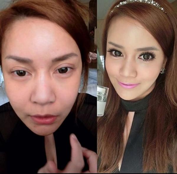 """Gương mặt Vanrisa sau khi """"tân trang"""". (Ảnh: Internet)"""