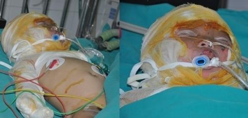 Tình trạng của bé vẫn rất nặng, đường hô hấp và mắt bị tổn thương nặng.