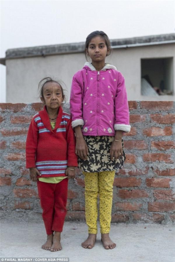 """""""Con ước được xinh đẹp như chị mình"""" - cô bé Anjali chia sẻ.(Ảnh: Daily Mail)"""