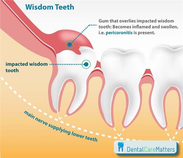 Mọc răng khôn thường gây ra cảm giác đau đớn. (Ảnh: Internet)