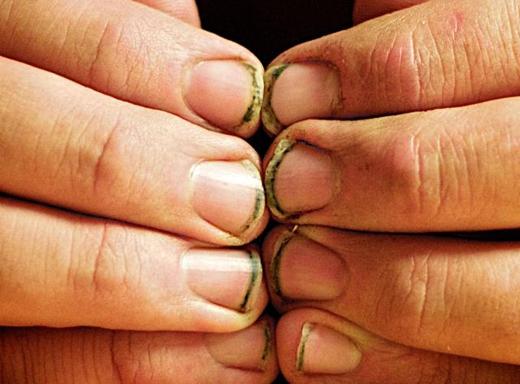 Móng bẩn và dài: đàn ông con trai không có lído gì để móng tay dài cả. Nếu phải làm việc tay chân thì nên đeo găng tay để tránh đất bám vào móng, và đừng nên để móng quá bẩn. Móng chân cũng thế. (Ảnh: Internet)
