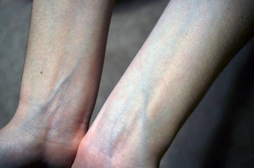 Các bước sóng ánh sáng đã làm cho bạn thấy tĩnh mạch thành màu xanh. (Ảnh: Internet)