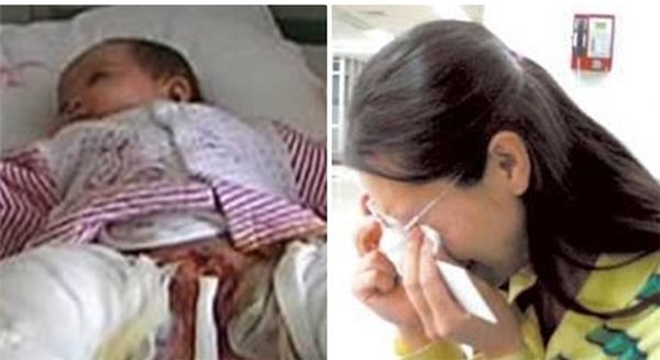 Bé trai 5 tháng tuổi bị đốt cháy bộ phận sinh dục do sai lầm của người mẹ.