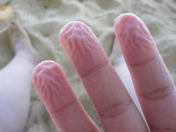 Da tay thường nhăn nheo sau khi ngâm nước. (Ảnh: Internet)