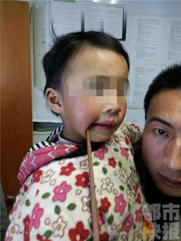 Bé gái 3 tuổi bị đũa đâm xuyên miệng.