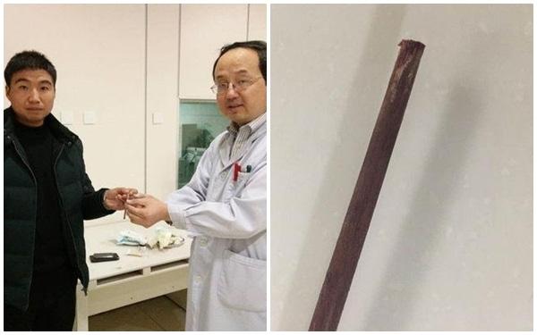 Chiếc đũa dài khoảng 25cm đã được lấy ra.