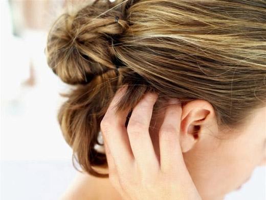 Không chỉ gàu mà việc gãi đầu cũng góp phần làm hư tóc. (Ảnh: Internet)