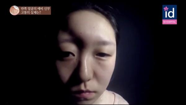 Sau vụ tai nạn, gương mặt cô đã bị biến dạng trầm trọng: phần trán bị trũng xuống, đôi mắt phát triển không cân xứng, cái mũi cong veo như cây cung. (Ảnh: Internet)