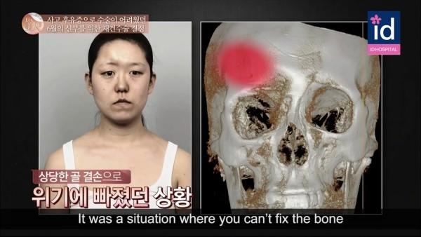 Rũ bỏ khuôn mặt biến dạng, cô gái trở nên xinh đẹp sau 64 ngày