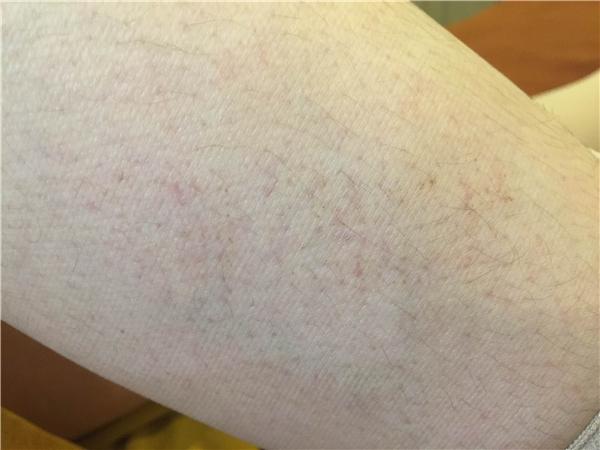 Những vết đỏ nằm ẩn dưới da. (Ảnh: Internet)