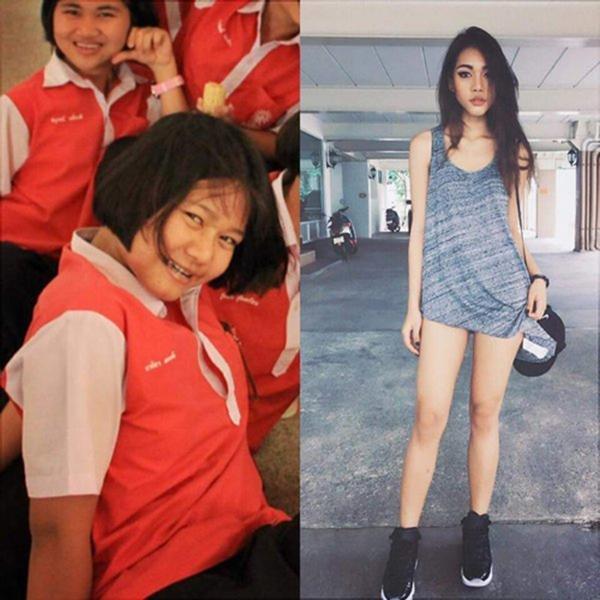 Bức ảnh trước và sau phẫu thuật thẫm mĩ của Naika Nyika. (Ảnh: Internet)