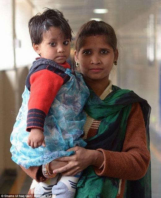 Ấn Độ: Bé gái có chân thứ 3 mọc ở lưng