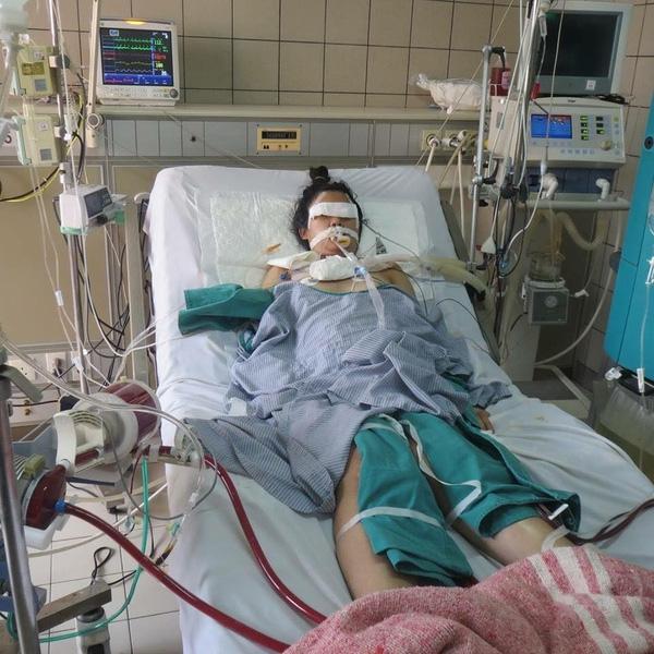 Lam đang điều trị tạibệnh viện Bạch Mai, Hà Nội. Ảnh: Internet