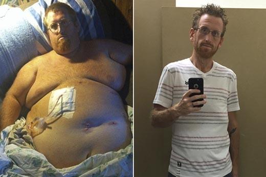 Người đàn ông này chưa từng quan tâm đến cân nặng của mình cho đến một ngày anh phải nhập viện vì lí do sức khỏe. Anh mới nhận ra tầm quan trọng và sự ảnh hưởng của của cân nặng đến cuộc sống.(Ảnh: Internet)