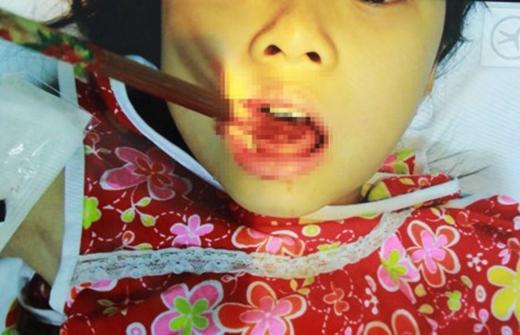 Đôi đũa đâm xuyên qua lưỡi bé N.A. (Ảnh: Nguyễn Thế Huy)