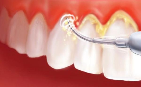 Vì sao răng của chúng ta lại xuất hiện những mảng bám kinh dị