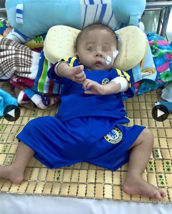 Hình ảnh bé Thành lợi gầy trơ xương được cộng đồng mạng chia sẻ. Ảnh: FB